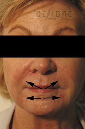 Juvederm Injections After Pictures 3