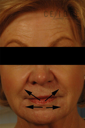 Juvederm Injections Before Pictures 3