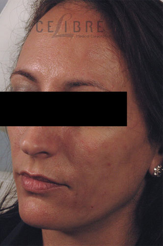 Juvederm Injections After Pictures 4