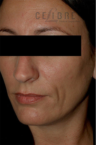 Juvederm Injections Before Pictures 4