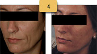 Juvederm Before and After Cheek Shaping Pictures Sm 4