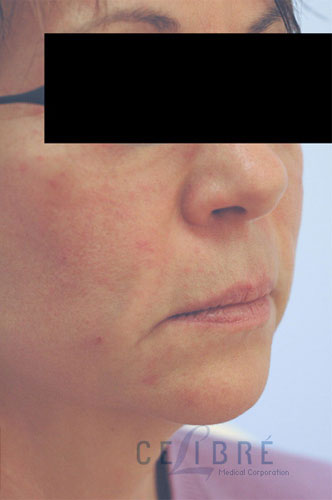 Juvederm Injections After Pictures 5
