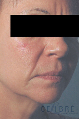Juvederm Injections Before Pictures 5