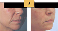 Laugh Lines Juvederm Before and After Pictures Sm 5