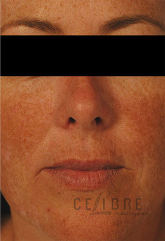 Juvederm Injections After Pictures 6