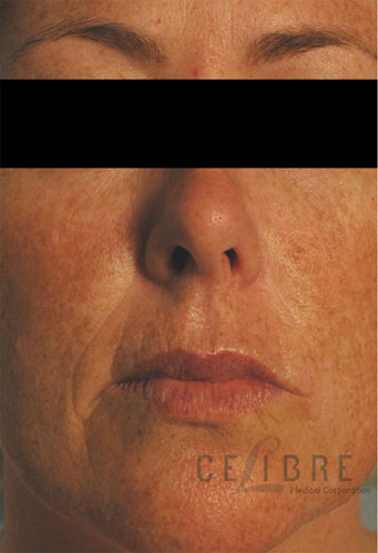 Juvederm Injections Before Pictures 6