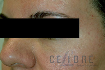 Juvederm Injections After Pictures 7