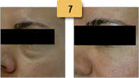 Juvederm Before and After Pictures Sm 7