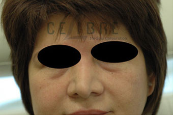 Juvederm Injections Before Pictures 8