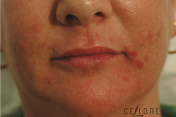 Juvederm Injections After Pictures 9