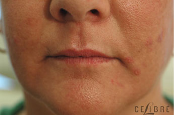 Juvederm Injections Before Pictures 9