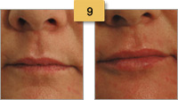Juvederm Before and After Pictures Lip Augmentation Sm 9