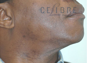 Facial Hair Laser Hair Removal on Dark Skin After Picture by Celibre Medical Corporation