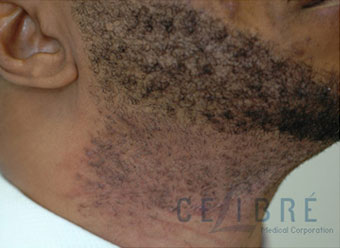 Facial Hair Laser Hair Removal on Dark Skin Before Picture by Celibre Medical Corporation