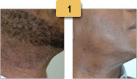 Laser Hair Removal Before and After Pictures Sm 1