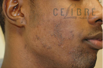Ingrown Hair Dark Skin Laser Hair Removal Before Picture 2 by Celibre Medical Corporation