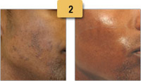 Laser Hair Removal Before and After Pictures Sm 2