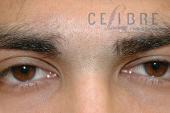 before and after laser hair removal for unibrow 4