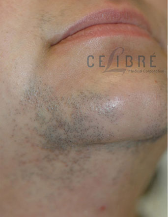 Facial Hairs Laser Hair Removal Before Picture 5 by Celibre Medical Corporation