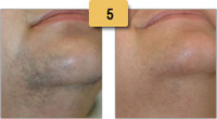 Laser Hair Removal Before and After Pictures Sm 5
