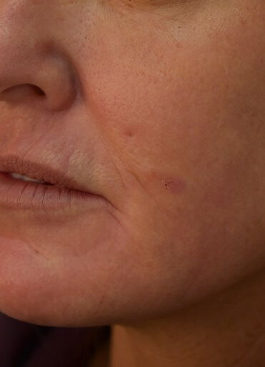 Laser Resurfacing After Pictures 1