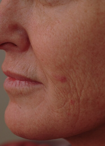 Laser Resurfacing Before Pictures 1