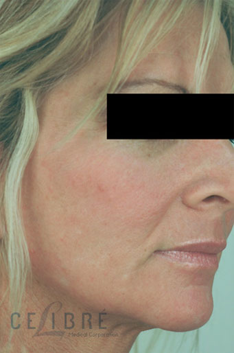 Before And After Laser Resurfacing For Sun Damage 2