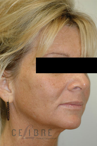 Laser Resurfacing Before Pictures 2