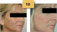 Laser Resurfacing Before and After Pictures Sm 2