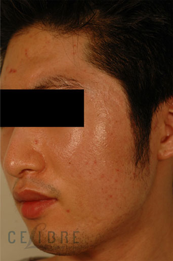 Laser Resurfacing After Pictures 3