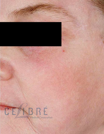 Laser Resurfacing After Pictures 4