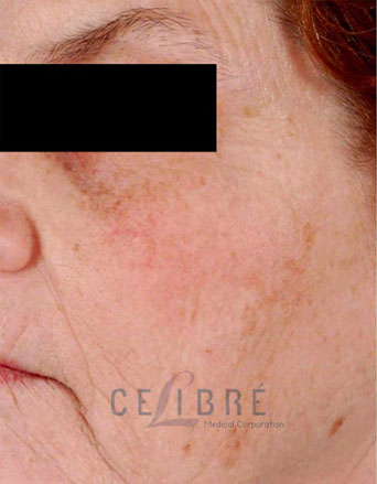 Laser Resurfacing Before Pictures 4