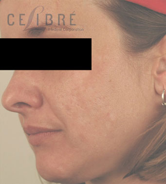 Laser Resurfacing After Pictures 5