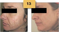 Laser Resurfacing Before and After Pictures Sm 5