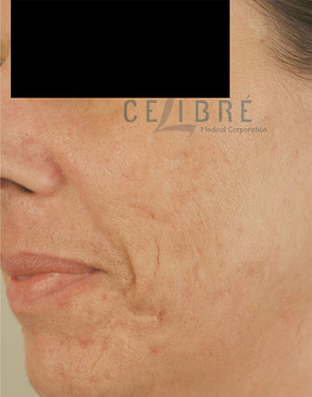 Laser Resurfacing After Pictures 6