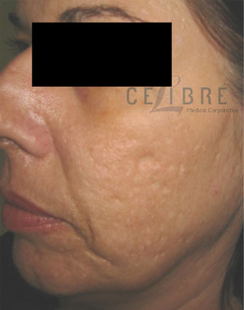 Laser Resurfacing Before Pictures 6