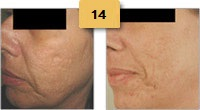 Laser Resurfacing Before and After Pictures Sm 6