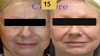 Laser Resurfacing Before and After Pictures Sm 7