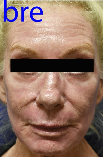 Laser Resurfacing After Pictures 7