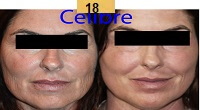 Profractional Laser Resurfacing Before and After Pictures Sm 1