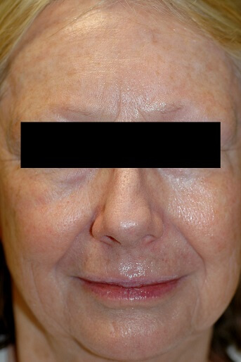 Laser Resurfacing Before Pictures 7