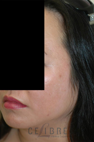 Melasma After Pictures 1