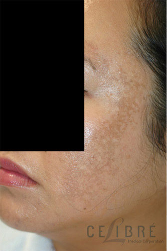Melasma Before Pictures 1