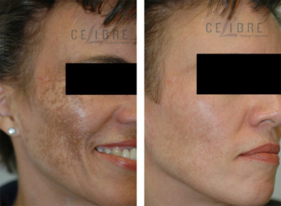melasma before and after picture