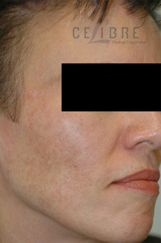 Melasma After Pictures 2