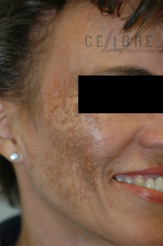 Melasma Before Pictures 2