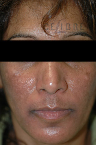 Melasma After Pictures 3