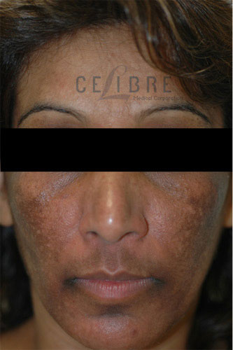 Melasma Before Pictures 3