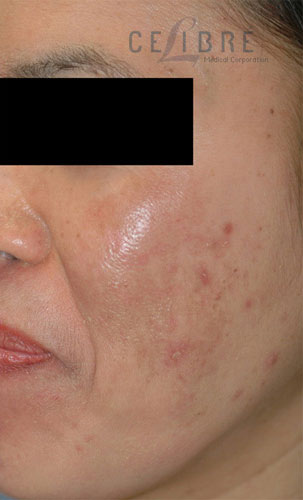 Melasma After Pictures 4