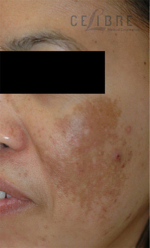 Melasma Before Pictures 4